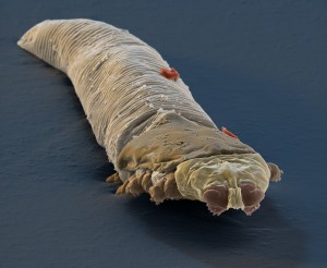 This is colorized scanning electron micrograph of Demodex (Demodex folliculorum), tiny parasitic mites that live in the hair follicles of humans and other mammals. A friend got it for me from Eye of Science / Science Source. Gross, huh?